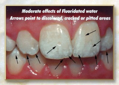 what fluoride does to your teeth